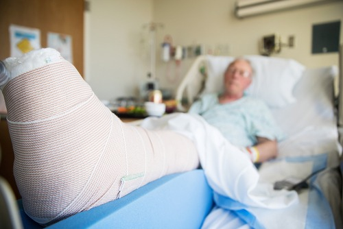 What factors can make fall injuries more severe?