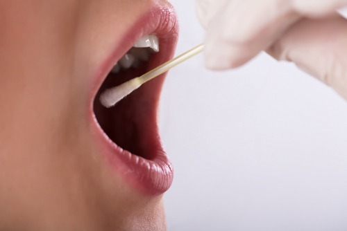 Report: Saliva tests may improve efforts to diagnose Alzheimer's