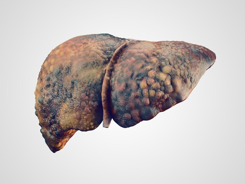 Liver disease such as cirrhosis can be a disabling condition