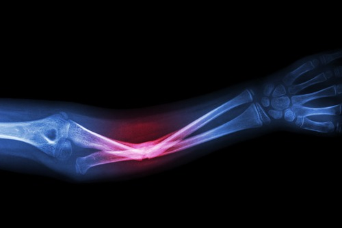 How to Get Disability for Bone Fractures | Social Security