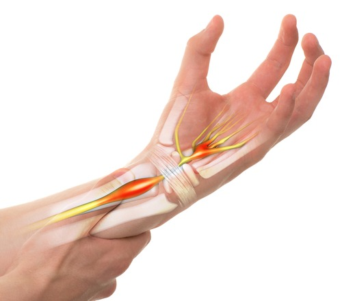 How to Get Disability for Carpal Tunnel Syndrome | The Disability